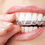 Sistema d'ortodòncia Invisalign per adolescents i adults
