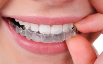 Invisaling és l'alternativa als braquets. Són de plàstic transparent i fets a mida per cada pacient.