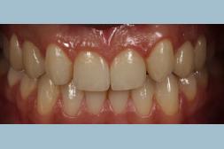 Pròtesi dental en adult per millorar el somriure